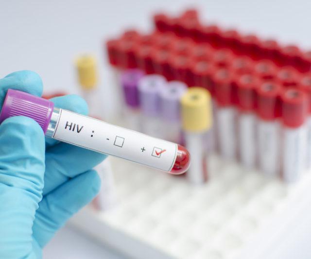 Aumento dos casos de HIV em idosos